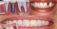 İmplant İçin Diş Hekimi Tavsiyesi